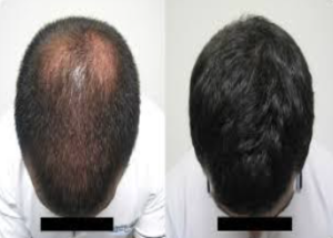 Dr. Kamy PRP Hairloss